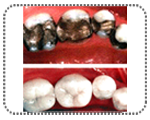 tooth color fillting