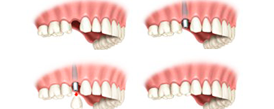 Immediate dental implants